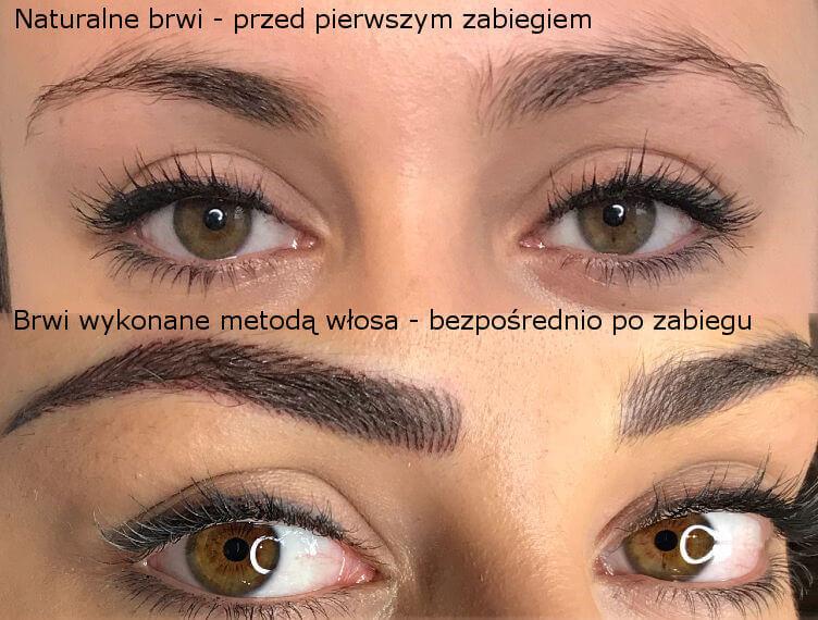 Metoda włosa